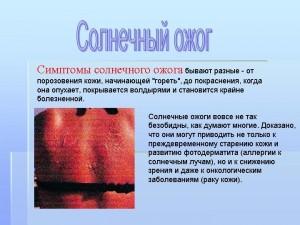 0026-026-Simptomy-solnechnogo-ozhoga-byvajut-raznye-ot-porozovenija-kozhi